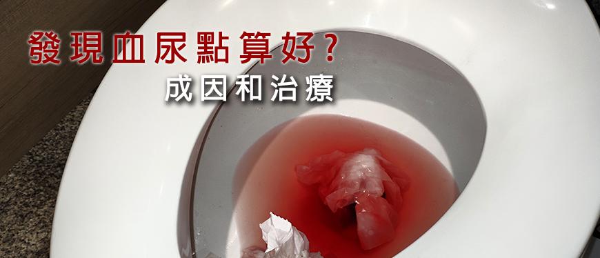 原因 血尿