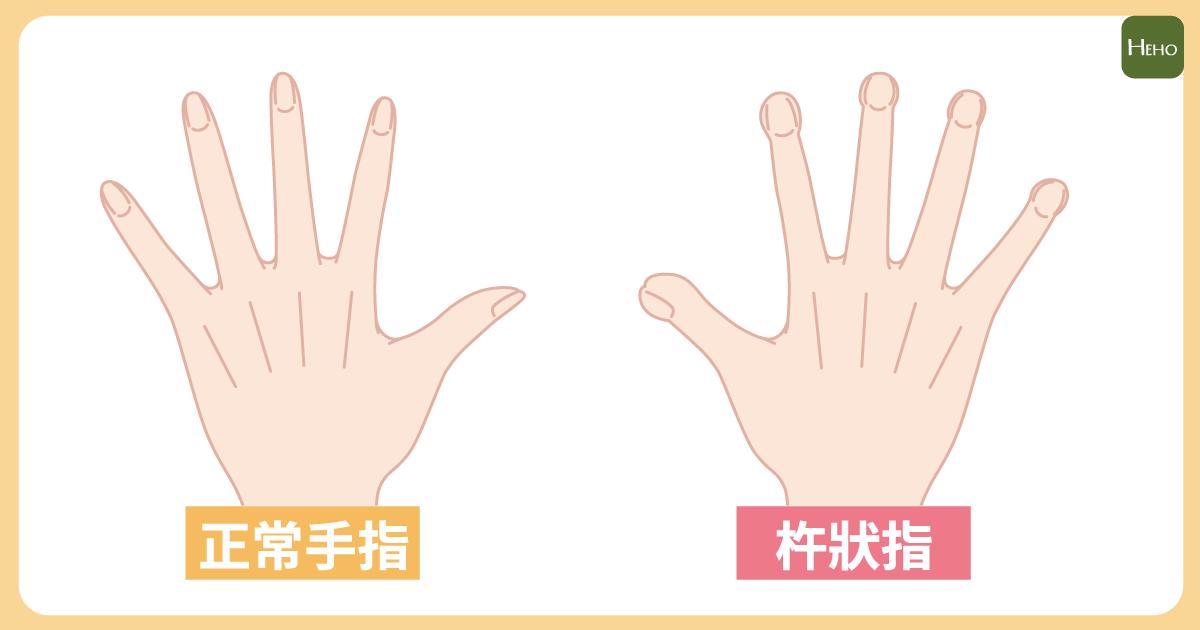 一張含有 手套, 餐具 的圖片自動產生的描述