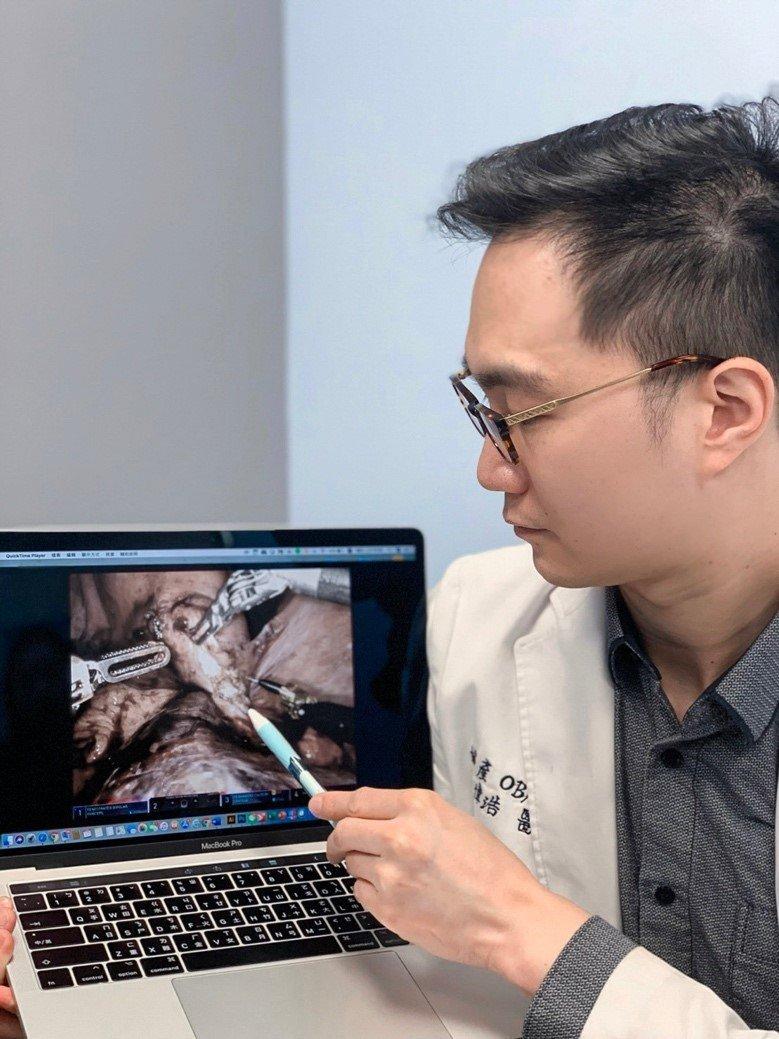 振興醫院婦產部主治醫師李偉浩。圖/李偉浩醫師提供