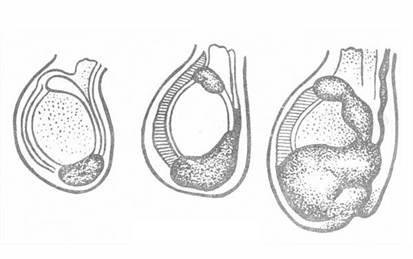 「鞘膜積液」的圖片搜尋結果