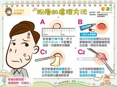長粉瘤怎麼辦?1圖4方法教你怎治。(圖/健談授權提供)