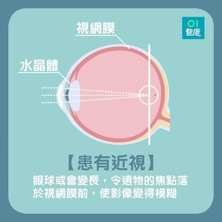 患有近視的眼睛。(01製圖)