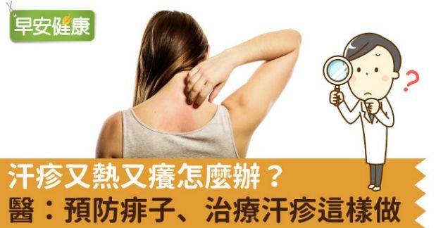 治療 汗疹