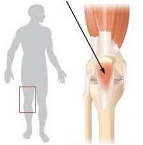 「反應性關節炎」的圖片搜尋結果
