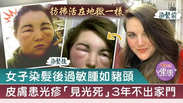 女子染髮後過敏腫如豬頭,皮膚患光疹「見光死」3年不出家門。