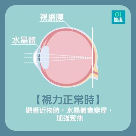 視力正常的眼睛。(01製圖)