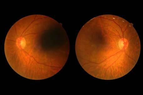 「視網膜病變」的圖片搜尋結果