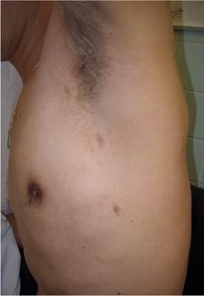 針孔式胸腔鏡手術是在兩側腋下附近各開三個3毫米的傷口,切除脊椎上交感神經T3位置。(港怡醫院提供)