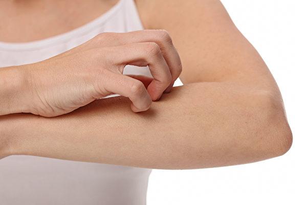蕁麻疹發作時有何症狀,如何正確止癢、治療和保養?(Shutterstock)