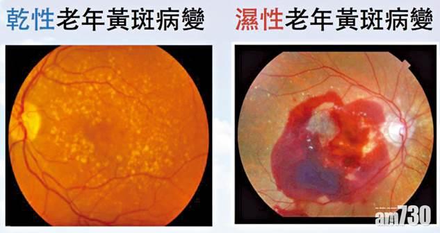 「濕性黃斑病變」的圖片搜尋結果