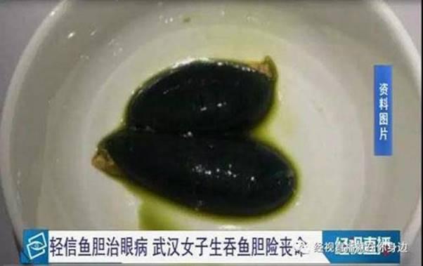 青魚的魚膽險些讓曹女士丟了命。(取材自北青網)