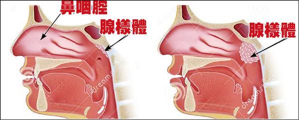 ▲腺樣體位於鼻咽腔上方,屬於免疫系統(左圖),如果長期受刺激會肥厚增生,阻礙呼吸道(右圖)。(記者蔡淑媛翻攝)