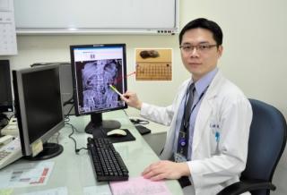 「輸尿管阻塞」的圖片搜尋結果