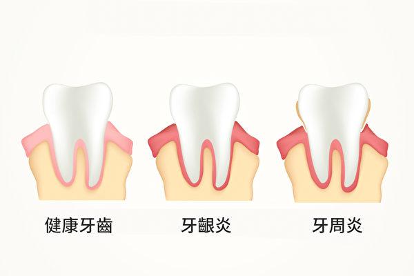 牙周病不僅是口腔疾病,也可能意味著身體已經慢性發炎。(Shutterstock)