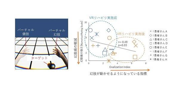 幻肢痛程度與幻肢運動情形的變化對應圖。(翻攝東京大學官網)