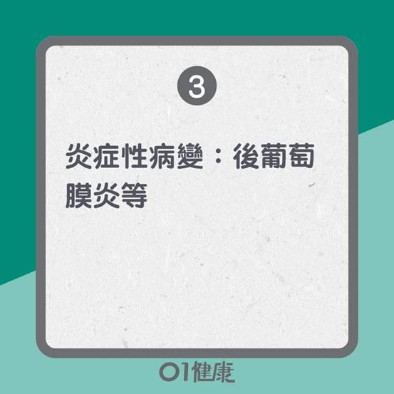 飛蚊症原因 (01製圖)